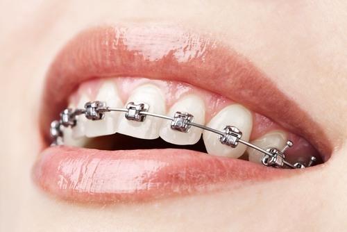Nắn chỉnh răng không chỉ là thẩm mỹ