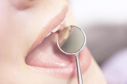 Cách chăm sóc răng miệng cho bệnh nhân tiểu đường