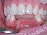 Hậu quả của việc mất răng không được phục hồi răng giả
