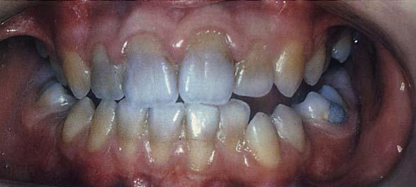 Răng đổi màu