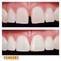 Răng thưa và các biện pháp khắc phục