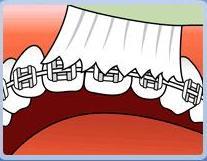 Hướng dẫn vệ sinh cho răng Chỉnh hình:
