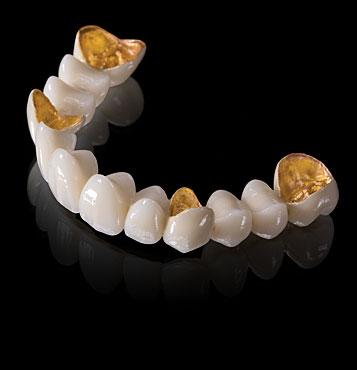 Mão - Cầu răng sứ quý kim (chi tiết...)