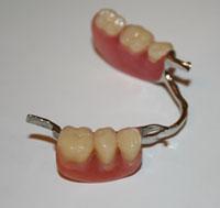 Cách vệ sinh răng miệng cho bệnh nhân mang hàm giả tháo lắp
