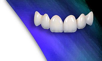 Cầu răng giả là gì?