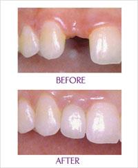 Cấy ghép Răng Implant tức thì