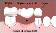 Chụp răng giả (Mão răng, crown) là gì?
