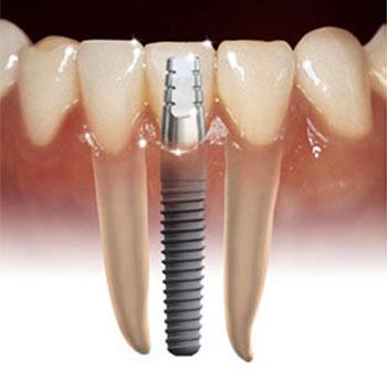 Cắm - Ghép Implant